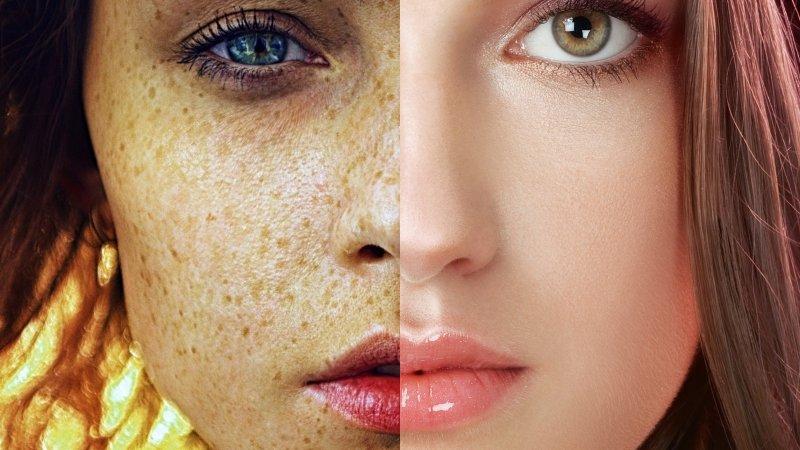 Аптека вместо тысячи косметологов. Топ-5 лучших средств для кожи