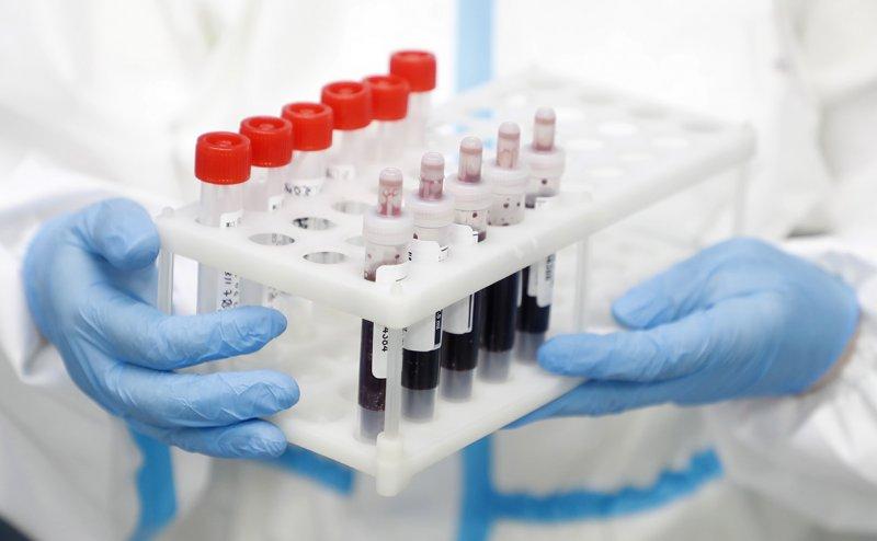Аналитики сообщили о резком всплеске заболеваемости коронавирусом в России