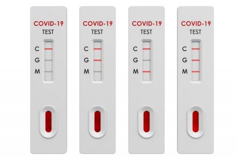 Уровень антител больше не считается надежным показателем защиты от COVID-19