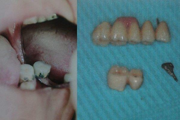 За 300 тысяч рублей пенсионеру выдернули здоровые зубы